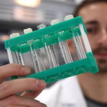 Медики каждый год находят онкологию у 51 тыс. белорусов