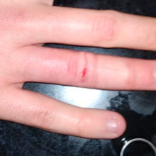 В Гомеле сотрудники МЧС спасли палец юноше