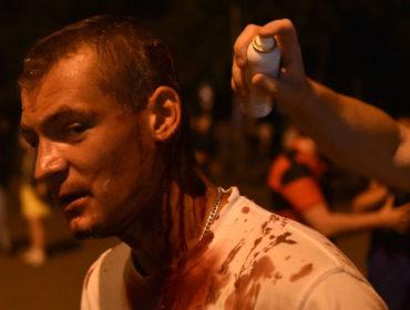 Минздрав рассказал о госпитализированных участниках акций протеста