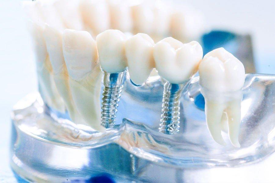 протезирования зубов